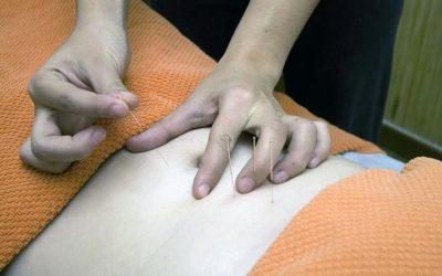 Agujas en la visita al fisioterapeuta